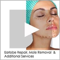 earlobe repair copy