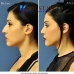 ethnic rhinoplasty san diego 1 copy