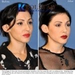 ethnic rhinoplasty san diego 3 copy