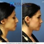 ethnic rhinoplasty san diego 4 copy