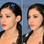ethnic rhinoplasty san diego 5 copy
