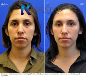 eye dark circles treatment san diego 30