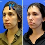eye dark circles treatment san diego 32 copy