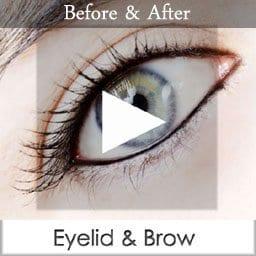 eyelid & brow copy