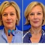 endoscopic brow lift san diego 106