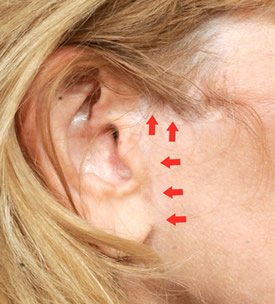 face lift scar