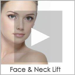 face & neck lift copy