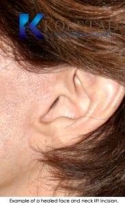 facelift scar san diego 503 copy