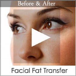 facial fat transfer copy