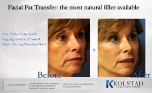 fat transfer results san diego