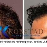 hair transplant san diego 2 copy