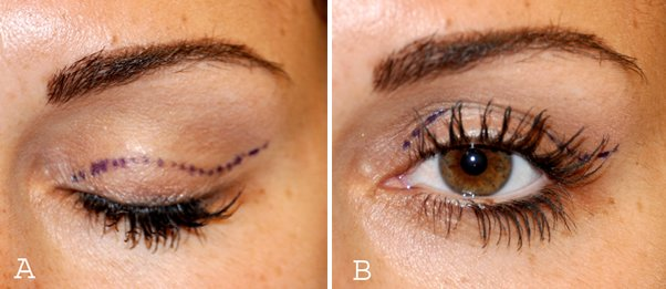 incisions-used-for-an-upper-eyelid-lift-blepharoplasty