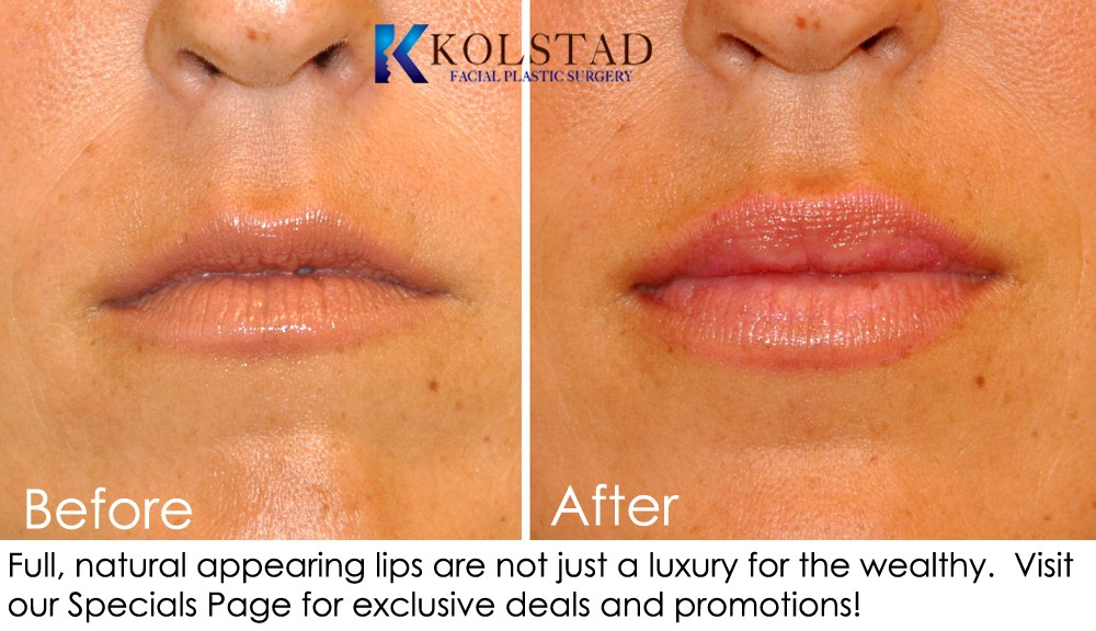 Dr Kolstad San Diego Facial Plastic Surgeon