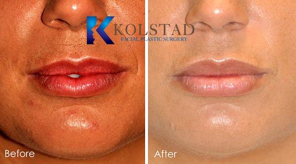 lip-augmentation-1