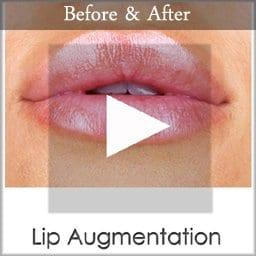 lip augmentation copy