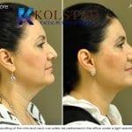 san-diego-neck-liposuction-148-copy