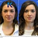 lower eyelid surgery san diego 51 copy