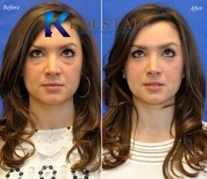 lower eyelid surgery san diego 52 copy