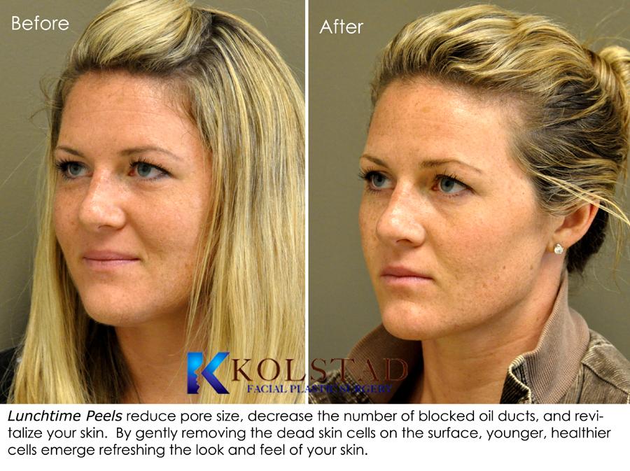 Dr Kolstad San Diego Facial Plastic Surgeon