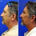 male face lift san diego 55