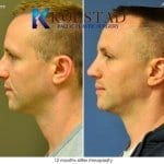male rhinoplasty san diego 1