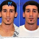 middle eastern rhinoplasty 0 copy