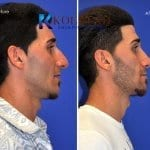 middle eastern rhinoplasty 1 copy