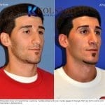 middle eastern rhinoplasty 3 copy
