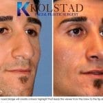 middle eastern rhinoplasty 4 copy
