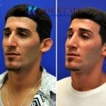 middle eastern rhinoplasty 5 copy