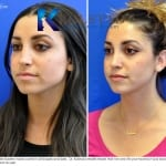 middle eastern rhinoplasty san diego 457 copy