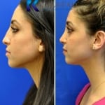 middle eastern rhinoplasty san diego 458 copy