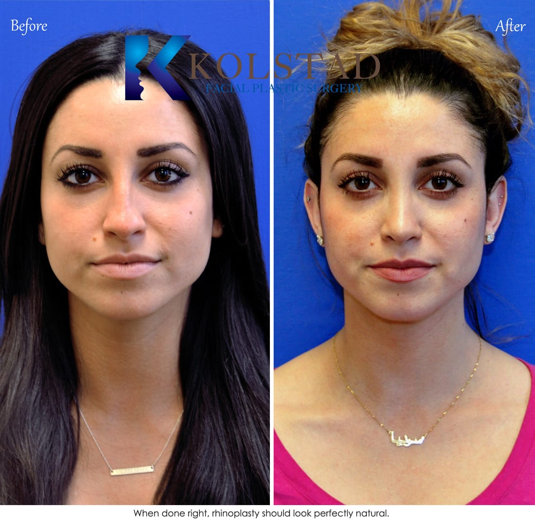 Denver Eyelid Specialist: Middle Eastern Rhinoplasty San Diego 461 Copy