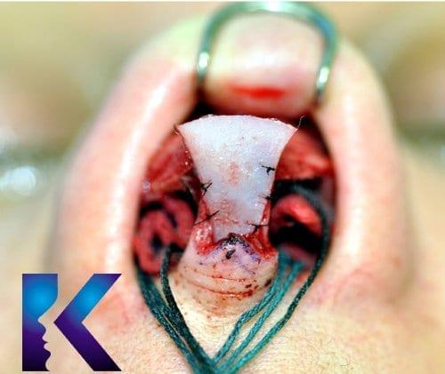 nasal tip shield graft