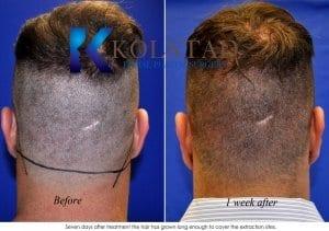 hair transplant san diego