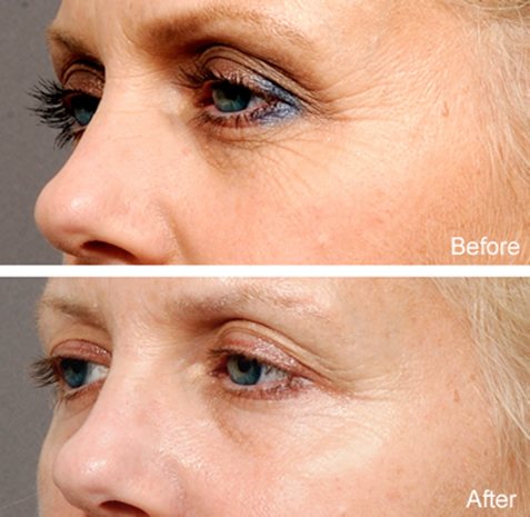 news-blog-the-eyelid-aging-process-what-can-i-do-besides-surgery-sm