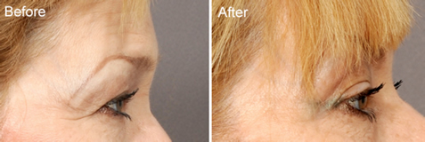 news-blog-the-eyelid-aging-process-what-can-i-do-besides-surgery