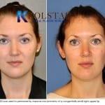 permanent lip augmentation san diego