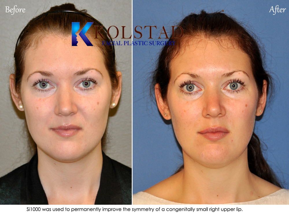 Neck Liposuction San Diego Remove Fat In Neck And Under Chin