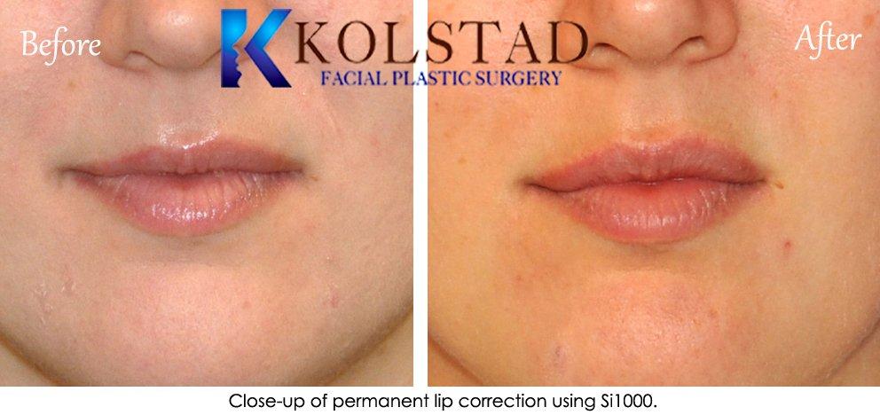 permanent lip augmentation 02