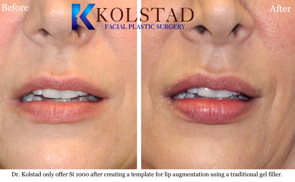 Lip Augmentation Before Amp After Gallery Dr Kolstad