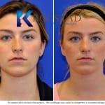 revision rhinoplasty san diego 104 copy