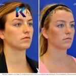 revision rhinoplasty san diego 105 copy