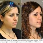 revision rhinoplasty san diego 2