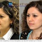 revision rhinoplasty san diego 4
