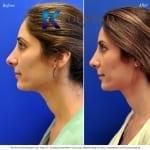 revision rhinoplasty san diego 544 copy
