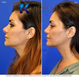 revision rhinoplasty san diego 85 copy