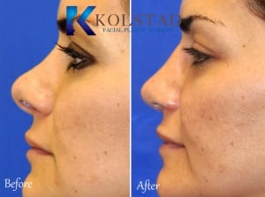 revision rhinoplasty san diego 86 copy
