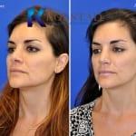 revision rhinoplasty san diego 88 copy