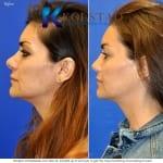 revision rhinoplasty san diego 90 copy